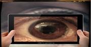 Ceguera transitoria inducida por los teléfonos móviles. Nuevos síntomas neurológicos relacionados con las nuevas tecnologías