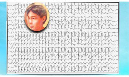 ¿Por qué es importante el videoEEG prolongado en el diagnostico de las crisis de ausencia?