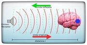 Neuromodulación ultrasónica: una nueva alternativa terapéutica para el tratamiento de la epilepsia y otras enfermedades neurológicas (I)