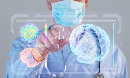 ¿Porqué falla la cirugía de epilepsia? Un nuevo estudio ofrece posibles soluciones para mejorar sus resultados